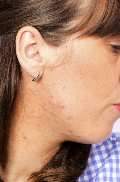 The Best Acne Treatments for Pre-Teens | LIVESTRONG.COM
