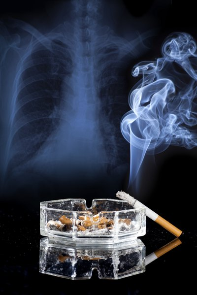 No bones about it: Smoking is a killer.