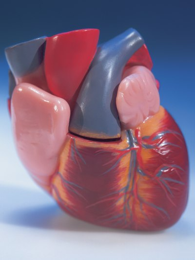 How to Reverse Calcium Buildup in the Heart