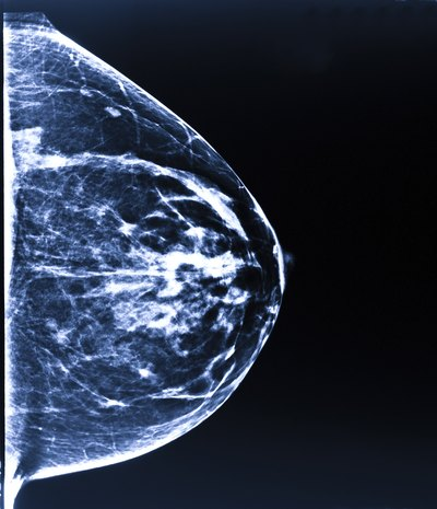 Can Too Much Calcium in Diet and Supplements Cause Breast Calcifications?