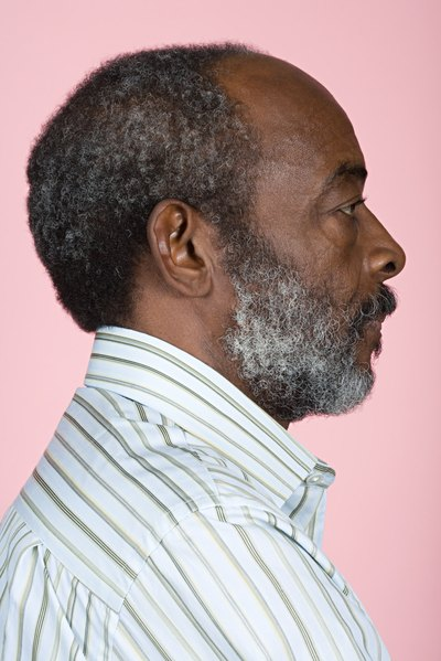 Hair Loss Treatment for African American Men