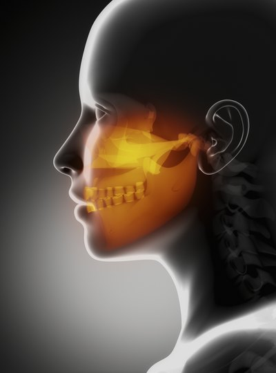 X-ray of jaw
