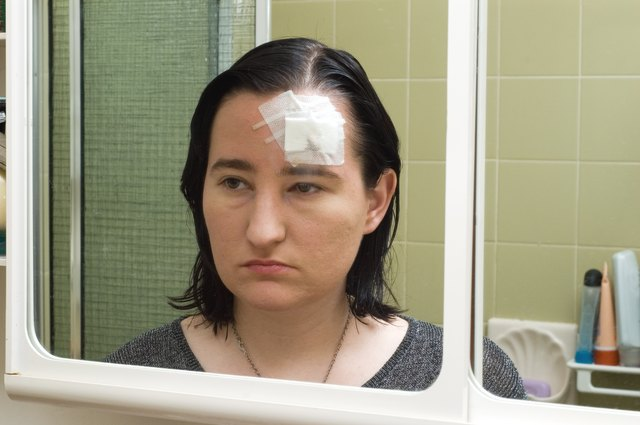 Woman with a concussion looking at reflection in mirror