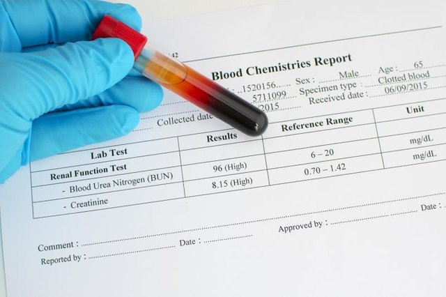 Can Too Much Protein Cause Bad Blood Work Results?