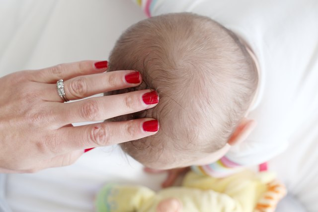 How To Treat Dry Scalp In Babies Livestrong Com