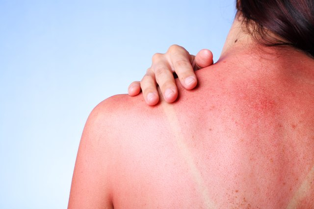 Use vinegar to soothe sunburns naturally.