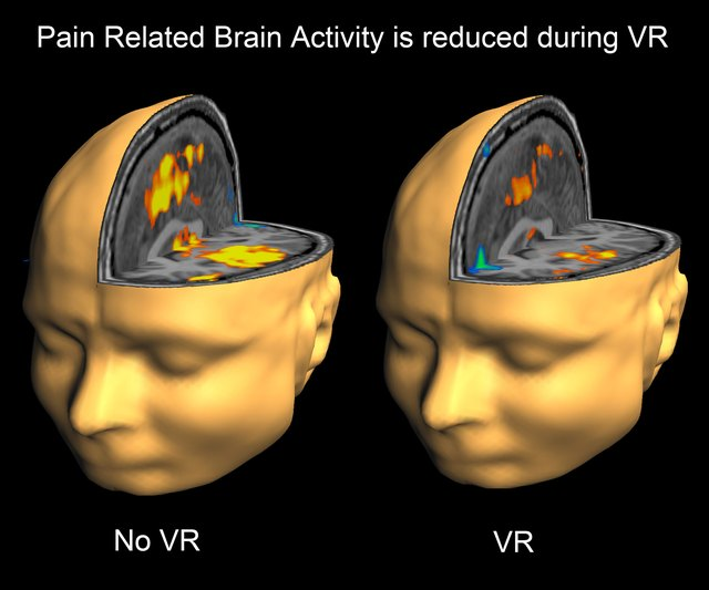 During MRI brain scans, people report large reductions in pain during virtual reality treatment.
