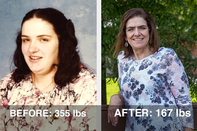 Gail lost 188 pounds after a heart attack scare