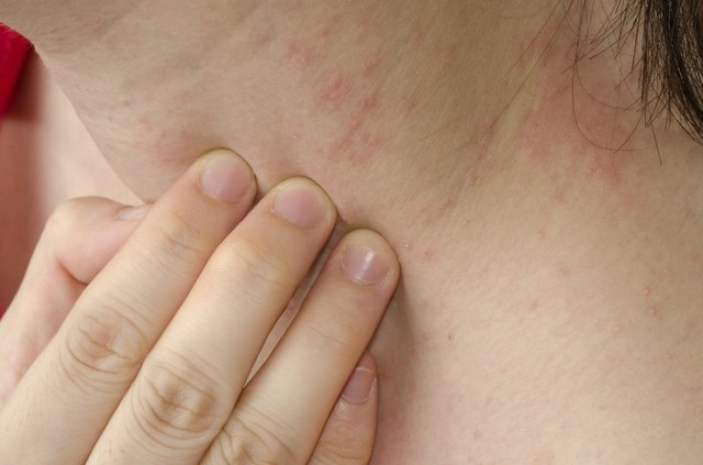 Allergic reactions to food result in skin rashes, itching, redness, swelling and tingling around the mouth.