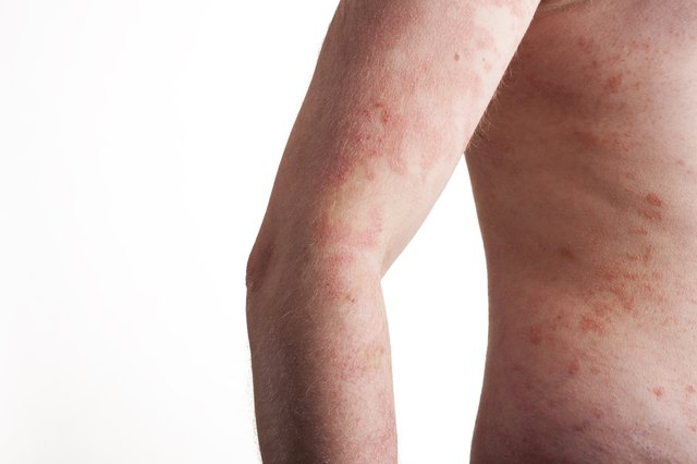 Eczema is a skin irritation.