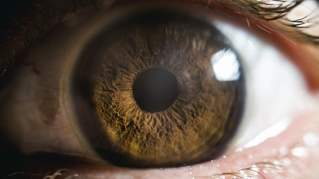 Closeup shot of an eye with emmetropia