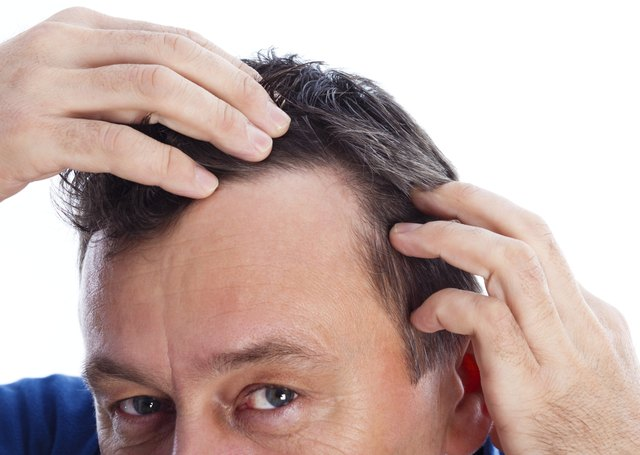 Apple-seed extract could help with hair loss.