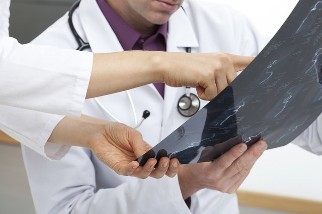 Close-up of doctors examining an X-ray.