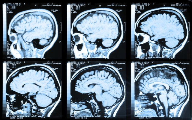 MRI brain scans on display
