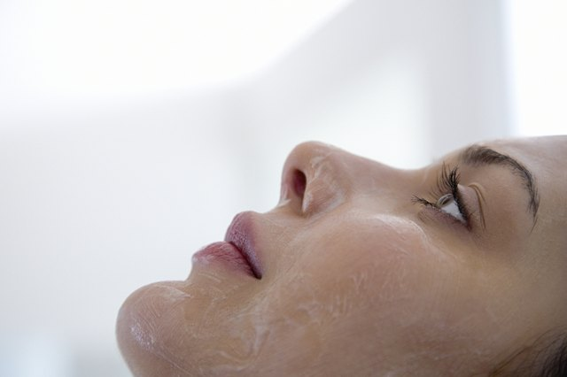 Chemical peels remove excess layers of dead skin.