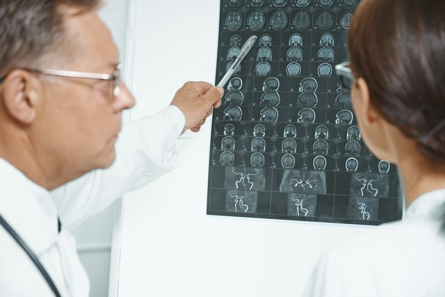 Doctors looking at brain scans.