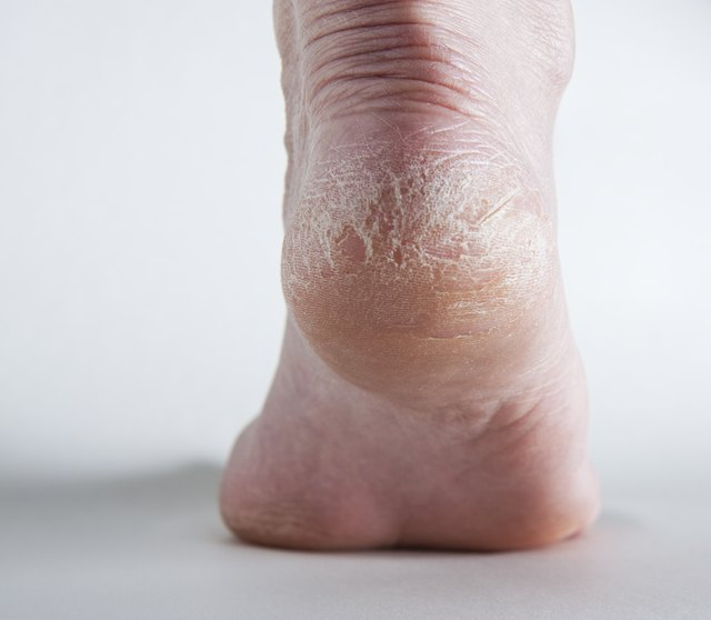 Severely cracked feet may need to e seen by a doctor.