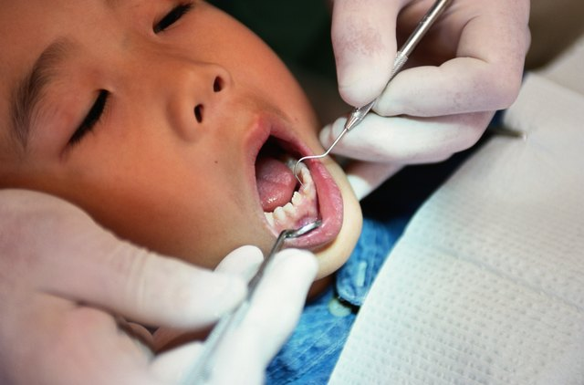 Children served healthy foods regularly may experience fewer cavities.