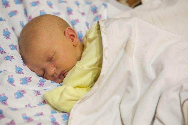 Ein schlafendes Neugeborenes mit Gelbsucht.