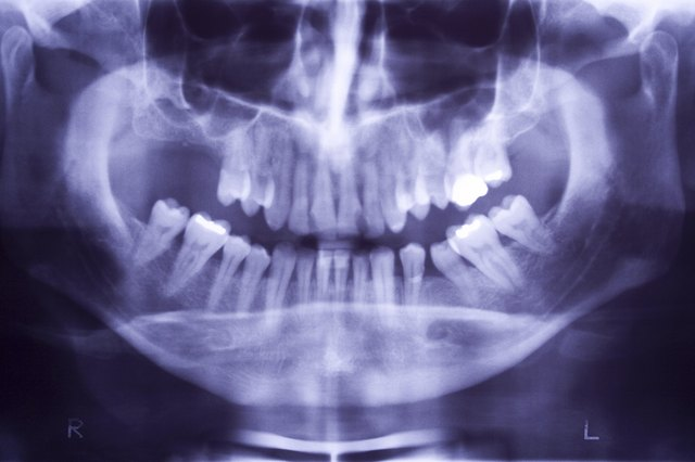 X-ray of periodontal disease