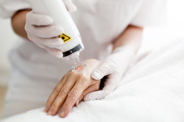 woman having laser resurfacing on her hand