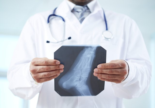 Doctor looking at foot x-ray