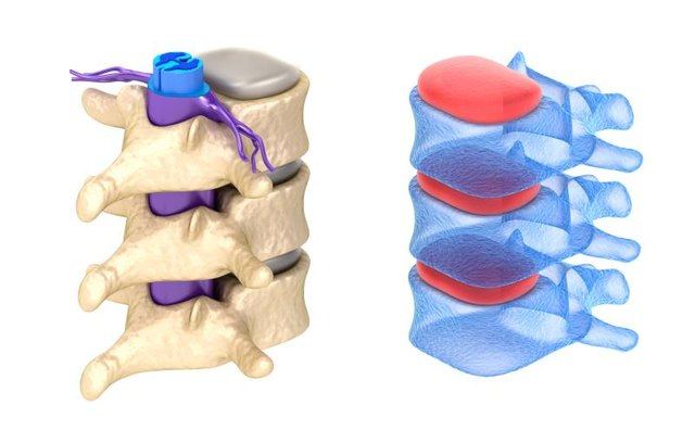 Pockets of gas escaping rapidly between vertebrae can cause the popping sound.