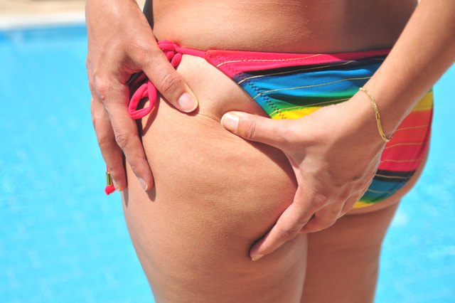 Cellulite gives a dimpled effect.