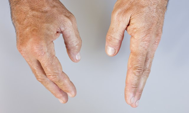 Man's swollen hands