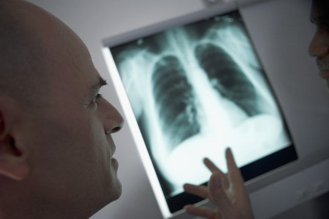 Doctors looking at a chest X-ray
