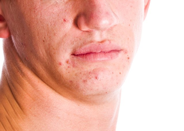 Acne can cause scarring.