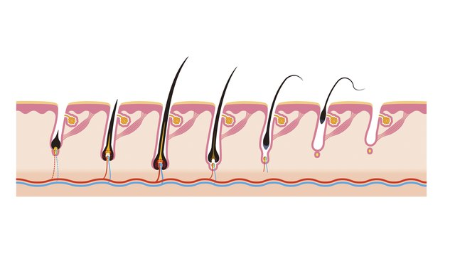 Instead of growing straight out, some hairs can fold back on themselves and become ingrown.