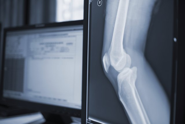 Leg X-ray next to a computer screen