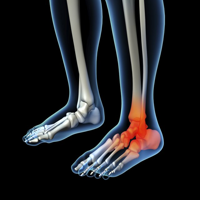 What Are The Causes Of Foot Amp Calf Pain Livestrong Com