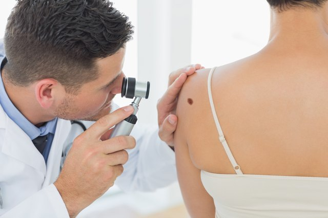 Doctor examining a mole on a woman's shoulder