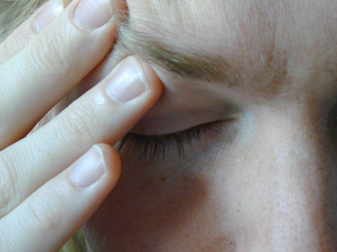 Atypical Migraine Symptoms