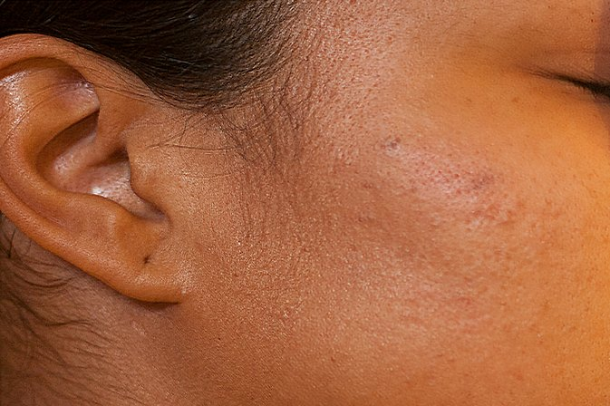 How to Fade Dark Acne Spots