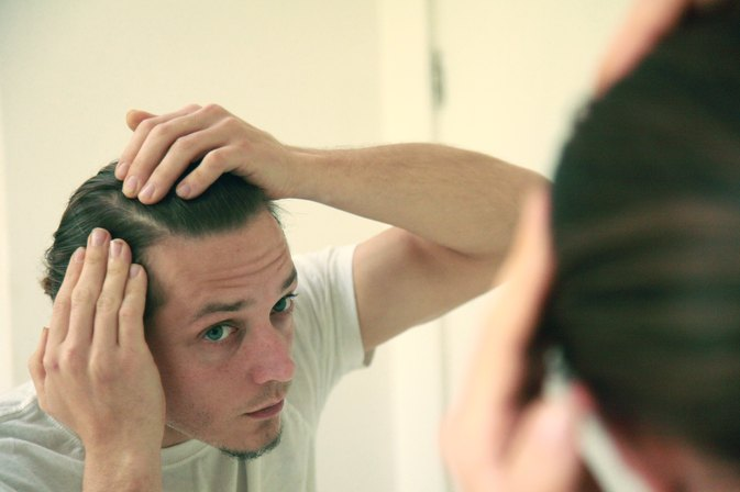 Is It Possible to Get Rid of Dandruff Really Fast Without Washing?