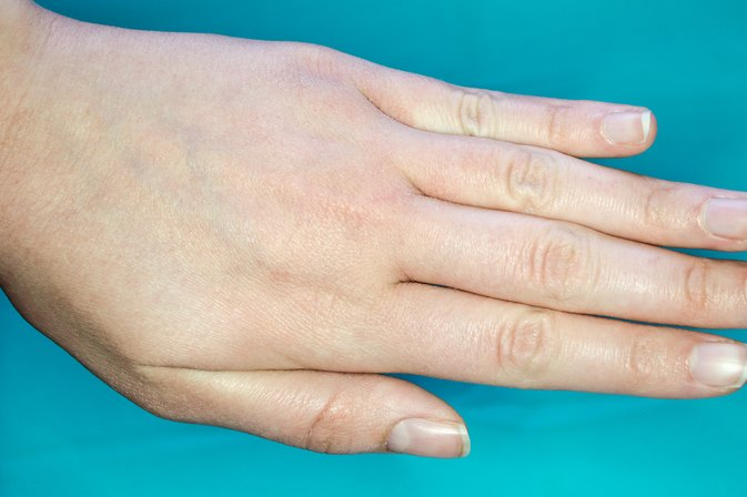 How to Get Rid of Dry Skin on the Hands