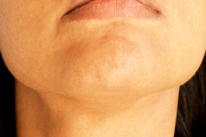 Treatment for Dry Skin on the Chin