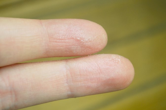How to Get Nail Glue Off of Your Skin