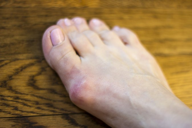 Foods That Will Eliminate Gout Flare Ups