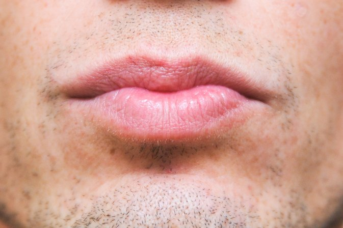 How to Remove Nicotine Stains From Lips