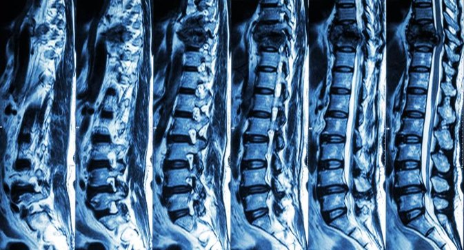 The Resolution of Grade I Lumbar Retrolisthesis with Prolotherapy: A Case Study