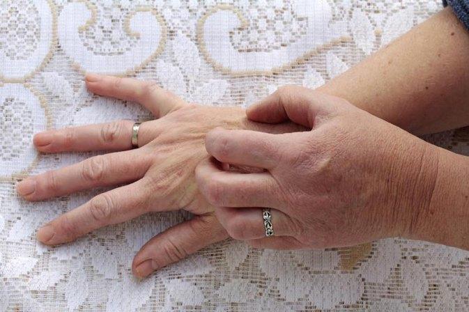 Itchy Skin Amp Liver Problems Livestrong Com