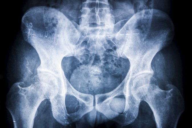 Hip Dislocation Symptoms