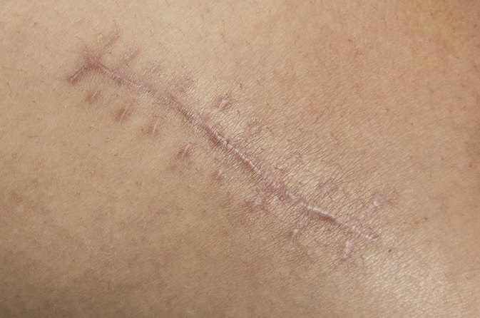 How to Heal Old Scars From the Inside Out