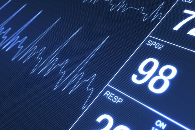 How to Count the Heart Rate on a 6 Second Strip