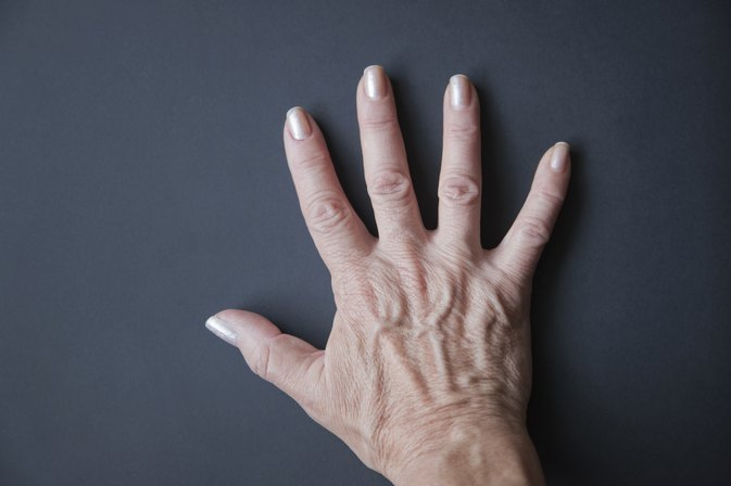 Can Low Salt Intake Improve Bulging Veins on Your Hands?
