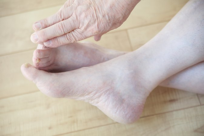Exercises to Strengthen Toes and Feet